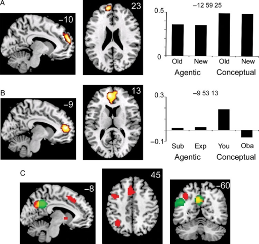 fMRI activations in the mPFC associated with self/other recollection. Effects in A and B are thresholded at P < 0.001 (uncorrected), with a minimum cluster size of 10 voxels, and inclusively masked to display only activations within the mPFC region associated with social cognition in Amodio and Frith (2006). Effects in (C) are thresholded at P < 0.05 family-wise error corrected for the whole brain, with a minimum cluster size of 10 voxels. The percent signal change bar graphs (A and B) plot the mean difference between each displayed condition and the nonepisodic Control task extracted from the peak voxel in each mPFC cluster. (A) A dorsal mPFC region with a peak at [−12, 59, 25] showed enhanced activation for both old and new items in both recollection tasks, compared with the Control condition. (B) a ventral mPFC region with a peak at [−9, 53, 13] showed selective activation for old items that participants had processed in relation to their conceptual self during study, and only when the retrieval task required recollection of conceptual self/other information. (C) In a whole-brain analysis, general old > new effects (old > new collapsed across retrieval task; red) were associated with a very different activation pattern from episodic retrieval task effects (episodic tasks > Control task; green), except in the precuneus where the 2 effects overlapped.
