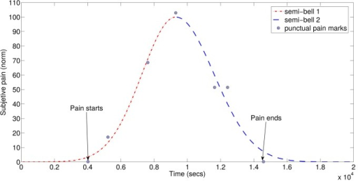 Modeling of subjective pain evolution curve.