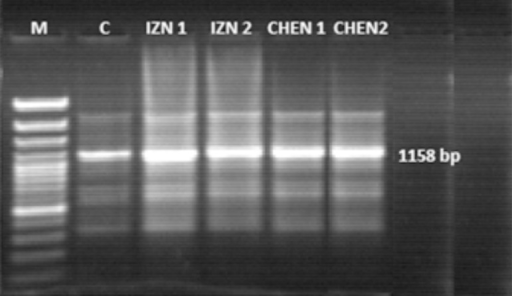 Colony PCR confirming the amplifications of 1158 bp specific SAG3 amplicons ofIndian isolates on 1.5% agarose gel. Lane M: Marker 100 bp DNA ladder plus; LaneC: Positive control DNA of T. gondii; Lane IZN 1,2: Amplicon of1158 bp from T. gondii Izatnagar isolate; Lane CHEN 1,2: Ampliconof 1158 bp from T. gondii Chennai isolate.