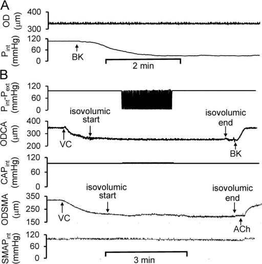 Role of circumferential stretch in the cyclic transmural pressure–induced vasodilation. (A) The representation of the decrease in Pint during BK-induced endothelium-dependent vasodilation. Pext was equal to zero. (B) At isovolumic condition, e.g., approximately constant diameter during cyclic transmural pressure, the cyclic transmural pressure failed to elicit integrin-mediated endothelium-dependent vasodilation in both coronary and skeletal muscular small arterial segments. CAPint, intraluminal pressure of coronary small arterial segment; SMAPint, intraluminal pressure of skeletal muscular small arterial segment.