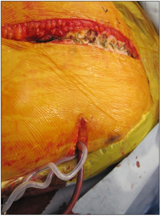 While inducing deep hypothermia, transapical left ventricular (LV) venting was achieved through a left-side mini-thoracotomy in order to prevent LV distension during cardiac arrest.
