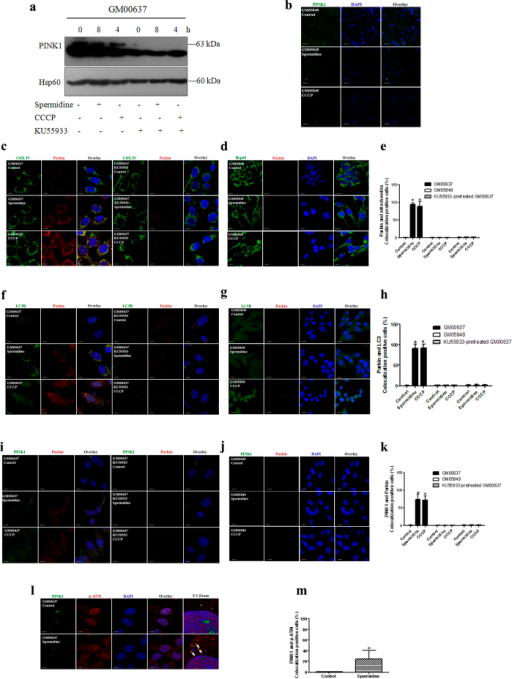 ATM impacted the accumulation of PINK1 and translocation of Parkin.KU55933-pretreated GM00637 cells and GM05849 cells were exposed to spermidine or CCCP. Immunoblotting and immunofluorescence analyses were performed as described in the legend to Fig. 3 (a–k), except for l and m, which show the colocalization of PINK1 and p-ATM Ser 1981.