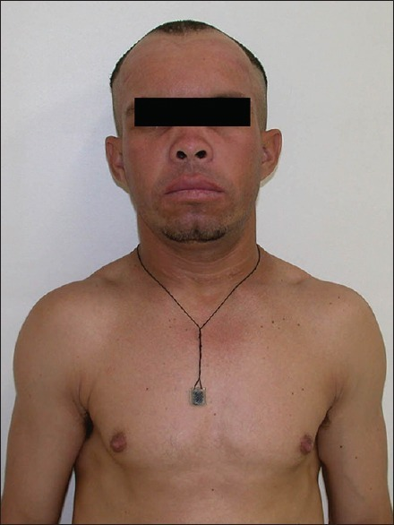 Full-face photograph showing improvement in overall clinical status