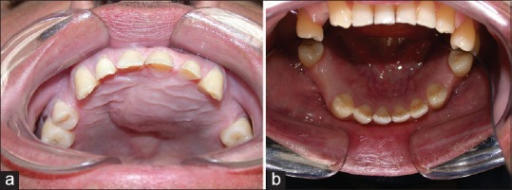 (a) Intraoral photograph of maxillary lesion showing healing with a small residual deformity; (b) Intraoral photograph of mandibular lesion showing healing