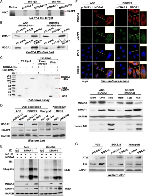 MDGA2 interacts with DNA methyltransferase 1 associated protein 1 (DMAP1) in gastric cancer. (A) Co-immunoprecipitation (Co-IP) of MDGA2 binding proteins followed by mass spectrometry identified DMAP1 to be a MDGA2-binding protein. (B) Co-IP of MDGA2 and DMAP1 with each other from proteins of MDGA2-transfected AGS and BGC823 cells. The presence of MDGA2 and DMAP1 in the Co-IP products was confirmed by western blot analysis using specific antibodies. (C) Direct interaction between MDGA2 and DMAP1 was shown by glutathione S-transferase (GST) pull-down assay. (D) Western blot analysis for DMAP1 expression. (E) MDGA2 increased the DMAP1 level by inhibiting its ubiquitin-mediated degradation. (F1) Confocal immunofluorescence analysis of MDGA2 and DMAP1 expression in MDGA2- and empty vector-transfected cells. The scale bar of 50 M is for unframed images of both cell groups. The yellow-frame fields were enlarged arbitrarily. (F2) Western blot detection of MDGA2 and DMAP1 in the membrane, cytoplasmic and nuclear fractions of AGS and BGC823 cells transfected with MDGA2 expression vector. (G) Western blot analysis showed increased levels of ataxia telangiectasia mutated (ATM) and p53 by MDGA2 over-expression in AGS and BGC823 cells and xenograft tumours.