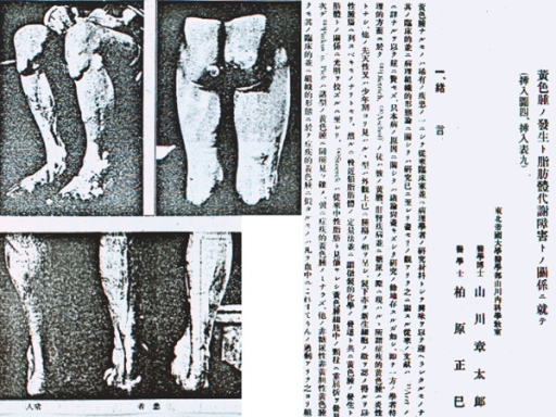 The first case of homo-FH in Japan was reported by Yamakawa and Kashiwabara in 1922. This 35-year-old man showed prominent generalized cutaneous and tendon xanthomatosis and severe ASCVD symptoms and signs due to hypercholesterolemia of 526 mg/dL.