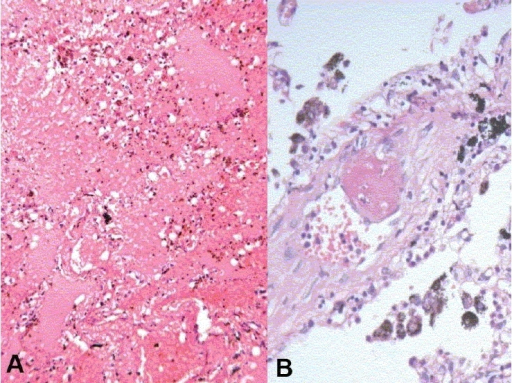 Microscopy showed evidence of pulmonary hemorrhage (A) and thromboembolism (B)