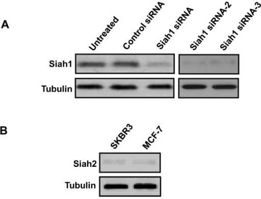 Knockdown of Siah1 expression in MCF7 cells. A: Western blot showed that siRNA as well as siRNA-2 and siRNA-3 for Siah1 resulted in suppressed protein expression in MCF-7 cells. B: Siah2 expression is decreased in SKBR3 and MCF-7 cells. α-Tubulin was used as an internal control.