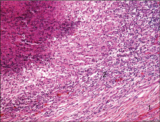 H and E-stained section of lung tissue from alpaca G showing a granuloma with central caseous necrosis (3), surrounded by intense mononuclear cell reaction (2) and fibroblasts (1). (10× magnification.).
