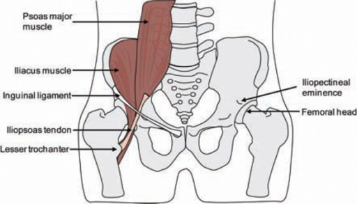 fig2-1941738109357298:Extra-articular Snapping Hip- Open-i
