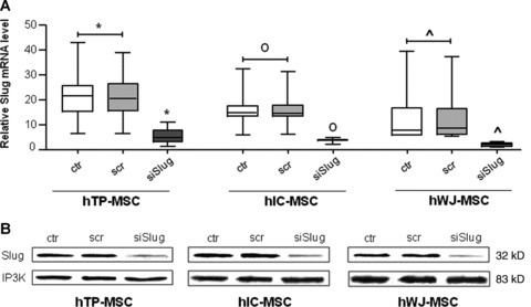 Silencing of Slug gene expression by siSlug in hMSCs. hMSCs were transfected with siSlug or a non-relevant siRNA (scr). (A) Slug expression was determined at mRNA level, and revealed by quantitative RT-PCR analysis. RT-PCR results were calculated using the DDCt method, using GAPDH as the housekeeping gene, and WJ-MSCs siSlug transfected sample as the calibrator. Statistical analysis was performed control and a non-relevant siRNA versus siSlug-silenced cells (*, o and ^ for hTP-MSC, hIC-MSC and hWJ-MSC, respectively), as described in Results. (B) Slug expression was determined at protein level, and revealed by Western blot. Ten μg of whole cell lysates were assayed on a 12% SDS-PAGE, and the proteins were visualized using Supersignal Femto Substrate (Pierce). Size markers are reported (kD). IP3K was used as loading control.