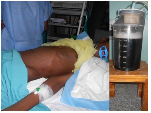 Immediate abdominal decompression (a) after 3700 mL of turbid pancreatic fluid was drained from the cyst (b).