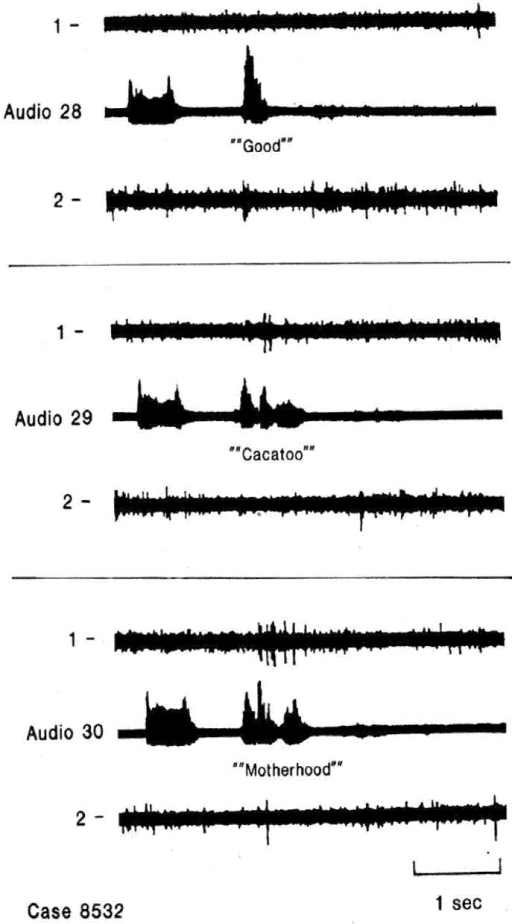 Single neuron activity related to second and subsequent syllables. Recordings from two electrodes at different depths in the same region of nondominant superior temporal gyrus during word listening. Neuron in channel 1 responds only to second and subsequent syllables of multisyllable words and not to single syllable words. Creutzfeldt and Ojemann, unpublished data [36].
