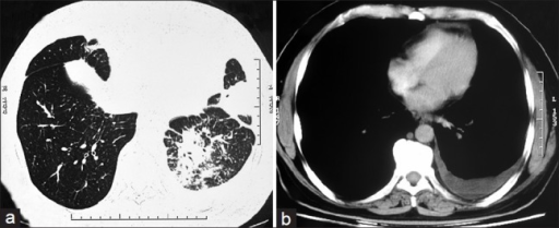 (a) Contrast enhanced computed tomography chest axial image in lung window setting show areas of consolidations in inferior segment of lingular lobe and lateral and posterior basal segments of left lower lobe (b) Axial image in mediastinal window demonstrate left pleural effusion