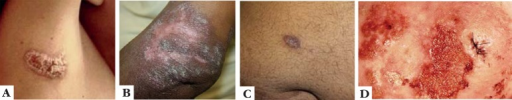 A. Tuberculosis verrucosa – verrucous plaque with scaling located onthe right axilla; B. Lupus vulgaris (Courtesy from Dr. Marcelo Lyra -Fiocruz); C. Lupus vulgaris (Courtesy from Dr. Marcelo Lyra -Fiocruz); D. Lupus vulgaris – erythematous infiltrating plaque withcrusts located on the buttocks