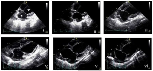Analysis of left ventricular dimensions in operated pigs by echocardiography.Representative apical long-axis views of the four chambers in the pig heart by two-dimensional echocardiography – (i) before surgery, (ii) immediately after surgery, (iii) one week after surgery, (iv) two weeks after surgery, (v) four weeks after surgery and (vi) eight weeks after surgery. *, left atrial; ▿, left ventricular.
