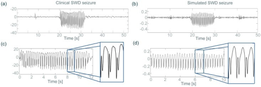 Comparison between clinical and simulated EEG.The clinical (left) and simulated (right) EEG are compared in various properties, such as the long-term time series (a,b), and seizure waveforms (c,d).