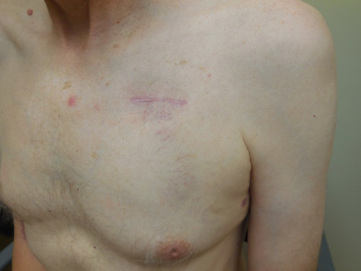 Frontal (A) and side (B) views of chest show normal-appearing right chest and outline of a subcutaneous implantable cardioverter-defibrillator with reticular telangiectatic erythema on the left chest of a 54-year-old man. (Copyright: ©2015 Beutler et al.)