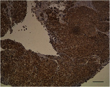 Non-keratinizing carcinoma with immunostaining for p65: Brown staining of 30% nuclei in moderate intensity, original magnification 100x at microscope, bar = 100 μm.