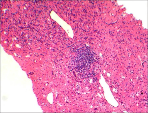 Initial liver biopsy with H&E stain showing ongoing chronic hepatitis with fibrous septa containing moderate inflammation. Inflammatory cells consist of mainly lymphocytes and few plasma cells.