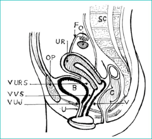 Anatomy of the female pelvis with relations of the urinary bladder to the female genital organs. It shows the surgical anatomy: vesico–uterine space, vesico–vaginal space, and urethro–vesical–junction.B: bladder, UR: uterus, U: urethra, V: vagina, O: ovary, F: fallopian tube, C: colo–rectum, Sc: sacrum, VURS: vesico–uterine space, VVS: vesico–vaginal space, VUJ: vesico–uretheral junction.