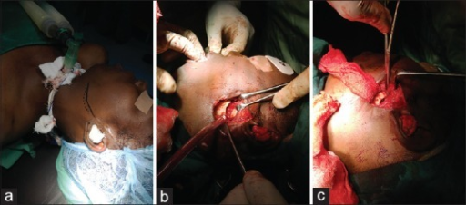 (a) Postrami surgical incision. (b) Gap arthroplasty of about 1 cm. (c) Interposition of masseter muscle