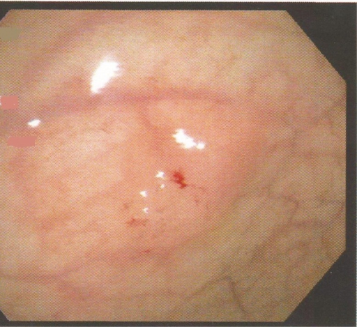 A polyp in the sigmoid colon found during colonoscopy showing overlying red  mucosa.