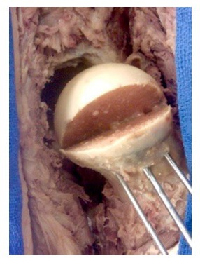 Osteotomy of the femoral head creating the slipped capital femoral epiphysis lesion in cadavers.