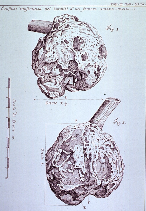 <p>Two views of monstrous bony outgrowth on the lateral condyle of a human femur.</p>