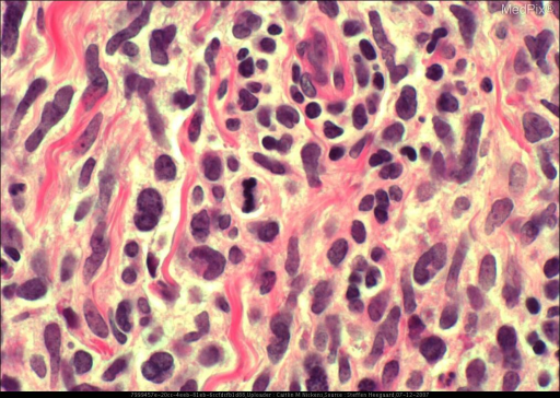 Histology of a patient with B-cell lymphoma of the lacrimal sac.