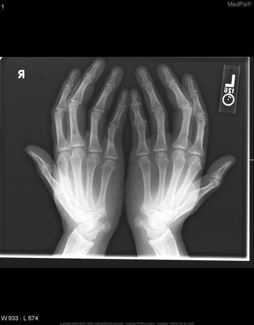 "Bilateral radiographs of the hands in the ""Catcher's or Norgaard view show abnormalities of the left hand including osteopenia with lacy reticulation of phalanges of the fifth finger."