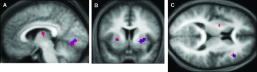 fMRI results. (A) Significant activations in V1 as a function of RW learning, for both the 4-way interaction (CS type × CS presence × visual outcome × RW learning; red), and the simple (3-way) interaction (blue), which is restricted to the CS+ trials (x = −6, also showing the caudate activation) and (B) in the putamen bilaterally (y = 6), displayed on the mean structural image across all subjects. (C) z = 12. Significant 3-way interaction CS type × CS presence × RW learning in the DLPFC and left putamen (red). This interaction is driven by the CS+ trials, as shown by the simple interaction in blue.