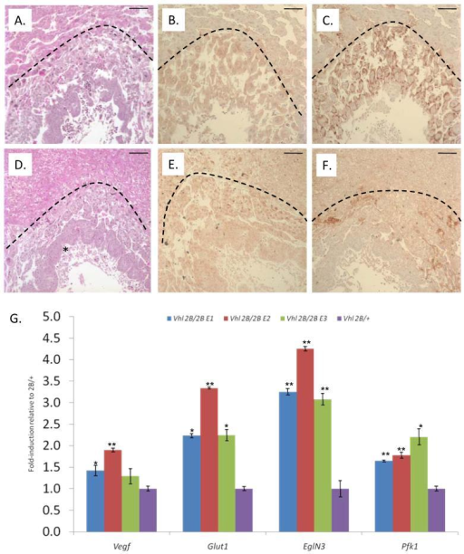 Homozygous Type 2B Vhl placentas display subtle vascular defects consistent with a Vhl- phenotype, and corresponding embryos display HIF target dysregulation despite normal morphology. A.-F. Histological analysis of Vhl2B/+ (A.-C.) and Vhl2B/2B (D.-F.) murine placentas, with H&E stain for morphology (A., C.) and immunohistochemistry for pVhl (B., E.) and for the HIF target Vegfa (C., F.) at 10X magnification. Arcs demarcate the maternal decidua (above) and placental (below) tissues. Note the lack of nucleated fetal RBCs (*) in the chorionic villi in Vhl2B/2B (D.) versus Vhl2B/+ (A.) placentas. Scale bars indicate 100μm. G. Quantitative RT-PCR for transcriptional activation of HIF targets Vegf, Glut1, EglN3, and Pfk1 in E9.5 Vhl2B/2B embryos relative to representative Vhl2B/+ littermate. Cycle thresholds were corrected with 18S ribosomal RNA. Error bars indicate SEM. *p<0.05. **p<0.001.