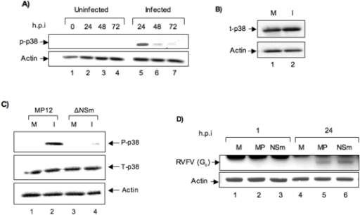Phosphorylation of p38 MAPK following MP12 infection.A) 106 HSAECs were infected with MP12 (MOI of 3). Cell extracts were obtained at 0, 24, 48 and 72 h post infection and analyzed by western blot with anti-phospho-p38 antibody. Actin was used as loading control. B) Total p38 (t-p38) levels in MP12 infected cells were compared with that of control cells at the 24-h time point by western blot with antibody to total p38 MAPK. Actin was used as loading control. C) Phosphorylation status of p38 MAPK in ΔNSm mutant virus infected cells and MP12 infected cells was determined by western blot analysis of cells infected with the NSm mutant strain (ΔNSm) and MP12 (MOI of 3). D) Comparable infection of HSAECs by MP12 virus and the ΔNSm mutant virus was determined by western blot of infected extracts obtained 24 h post infection with anti-RVFV antibody. M refers to mock-infected control cells, MP refers to MP12-infected cells and NSm refers to ΔNSm mutant virus infected cells.