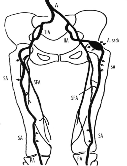 Lower Extremity Vasculature Diagram 35 Wiring Diagram Images