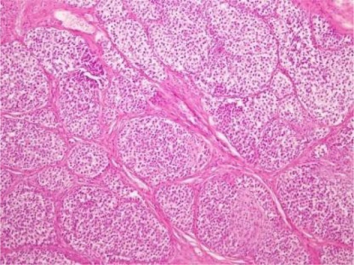 Dysgerminoma with gonadoblastoma in the left gonad of case#6.