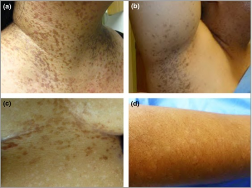 Clinical features of Galli–Galli disease. Hyperpigmented slightly scaly papules coalescing in a reticulate fashion over flexural areas, including (a) the anterior neck and (b) axillae; (c) reddish-brown thin papules (5–9 mm) in the inframammary area with multiple 4–7-mm hypopigmented macules scattered on the abdomen; (d) hypopigmented Galli–Galli disease macules on the forearm.