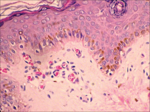 Histology of biopsy from buttock skin. Note poikiloderma features of hydropic degeneration of basal layer, proliferation of blood vessels, perivascular and periappendageal inflammatory infiltrate of lymphohistiocytes, melanin incontinence, and melanophages H and E, ×40