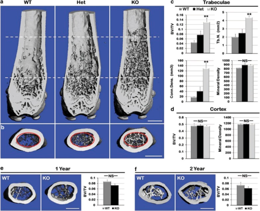 Increased trabecular bone in KO mice. To ascertain whether differences in boneformation persisted as the mice aged, 3-month-, 1–year- and 2-year-old mousefemurs from WT, Het and KO were subjected to microCT analysis. (a)Representative microCT generated longitudinal sections of hind limb femursdemonstrated increased number and penetration into the diaphysis of trabeculae(dotted lines) in the KO animal at 3 months. (b) Increased trabeculaeobserved in 200 16-μm slices in cross-section of the KO mouse.(c) Analysis of trabecular bone (red circle in b) shows asignificant increase in mineralized bone volume/total bone volume (BV/TV),trabecular number (Tb.n.) and connectivity density (Conn.Dens., anassessment of the number of connected structures in the trabecular bone network)in KO mice compared with WT. There was no difference in bone quality (mineraldensity) of trabeculae. (d) Cortical bone BV/TV and mean density showedno significant difference. (e) Trabecular analysis by microCT at 1 year ofage showed equalization of BV/TV, which persisted through 2 years (f).(n=3 for each genotype; **P≤0.01; NS, notsignificant; scale bar, 500 μm)