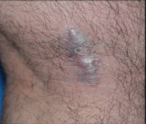 Brownish indurated plaque at the medial side of the popliteal fossa. (Copyright: ©2015 Duman et al.)