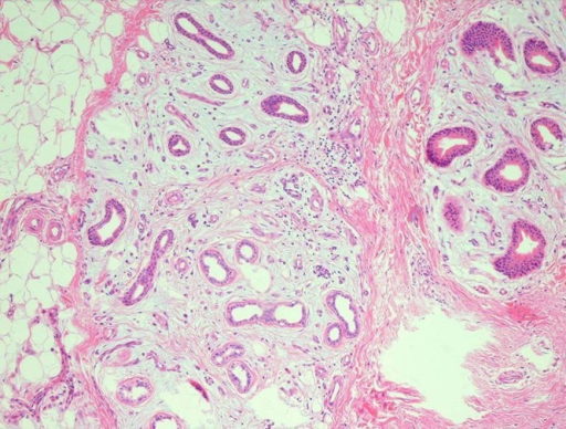 Proliferative eccrine glands and small blood vessels within the mucinous stroma (H&E, ×40 original magnification). (Copyright: ©2015 Duman et al.)