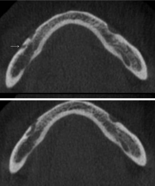 Axial sections of the mandible show the presence of two mental foramina on the right side and one on the left. The foramina are located at the same level, and the accessory foramen (arrow) on the right side is located in the distal direction.