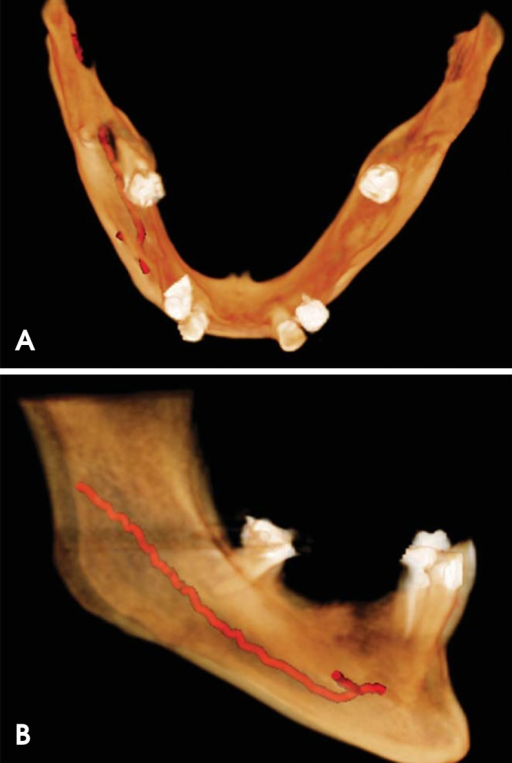 Superior (A) and right lateral (B) view of three-dimensional cone-beam computed tomography reconstruction of the mandible show the presence of an accessory mental foramen on the right mandible.