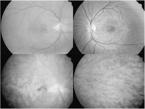 Patient 2. Top left: red free photograph of the right eye with residues of the fibrovascular membrane from the optic nerve partially removed during vitrectomy; top right: red free photograph of the unaffected left eye; down: fluorescein angiography of the right eye showing leakage of dye from the optic disc and the posterior and peripheral inflamed retina.
