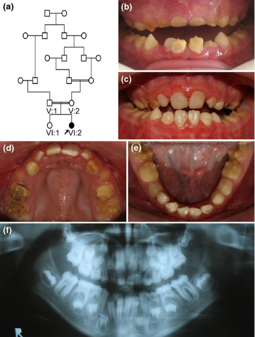 Pedigree, clinical photographs, and panoramic radiograph of the family. (a) Pedigree of the family. Consanguineous marriages are indicated with double lines. Family members who participated in this study are indicated under the symbol (V:1, V:2, VI:1, and VI:2). Proband is indicated with black arrow. (b) Frontal clinical photograph of the proband at age 8. (c) Frontal clinical photograph of the proband at age 10. Maxillary and mandibular anterior permanent teeth are restored with direct resin composite. (d) Maxillary clinical photograph of the proband at age 10. (e) Mandibular clinical photograph of the proband at age 10. Enamel is generally thin with some area of pitted pigmentation. Thicker enamel can be seen in the cervical part of the molar teeth. (f) Panoramic radiograph of the proband at age 8. The reduced thickness and radiodensity of the enamel can be seen in the developing permanent teeth.