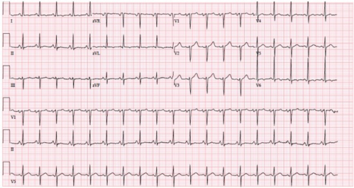 Initial EKG on January 21, 2015 at 9:04 am showing sinus tachycardia, left atrial enlargement and moderate voltage criteria for LVH.