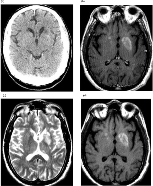 (a) Non-contrast CT scan showing ill-defined hyperdensi ...