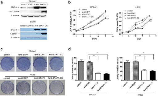 Overexpression of STAT1 or STAT1-CC induces growth inhibition of lung cancer cells. a Western blotting revealed whole cell levels of STAT1 and pSTAT1 in SPC-A-1 and H1299 cells transduced with lenti-STAT1 or lenti-STAT1-CC. b Overexpression of STAT1 or STAT1-CC resulted in significant reductions in the proliferation of SPC-A-1 and H1299 cells (++P < 0.01, lenti-STAT1 vs lenti-EGFP; **P < 0.01, lenti-STAT1-CC vs lenti-EGFP). c, d Representative image of foci formation in a monolayer culture. The colony formation rates were significantly decreased in STAT1 and STAT1-CC-expressed SPC-A-1 and H1299 cells. Experiments were repeated at least three times. Data are shown as mean ± SEM. **P < 0.01