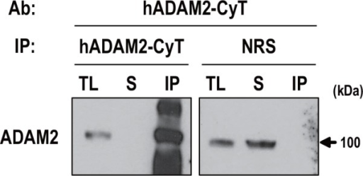 Immunoprecipitation with anti-hADAM2-CyT.Immunoprecipitation of ADAM2 was carried out using monkey testis lysates. Immunoprecipitation using normal rabbit serum was performed as a negative control. Immunoprecipitated lysates were immunoblotted with anti-hADAM2-CyT. Experiments were repeated three times. Reduced protein samples were subjected to SDS-PAGE using 8% resolving gel. Abbreviations: TL, tissue lysate (100 μg); S, supernatant; and IP, immunoprecipitated protein (1 mg); and NRS, normal rabbit serum.
