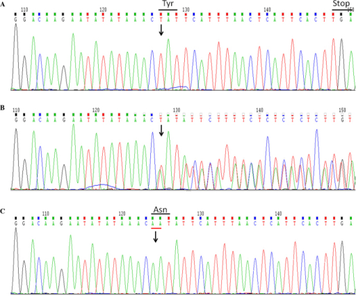 Sequence analysis of XIAP gene. Electropherograms of exon 4 of the XIAP gene from (A) the patient (homozygous mutation carrier), (B) his mother (heterozygous mutation carrier) and (C) his father (with normal sequence). Arrows indicate two-adenine deletion at nucleotides 1021–1022 of the coding sequence. The mutation caused a frameshift and premature stop codon (p.N341fsX348). XIAP, X-linked inhibitor of apoptosis; Tyr, tyrosine; Asn, asparagine.